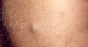Vaginal sebacious cysts
