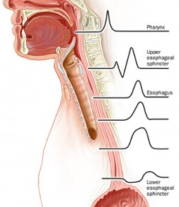 what-is-achalasia