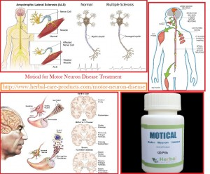 Natural herbal treatment for motor neuron disease and for What causes motor neuron disease mnd