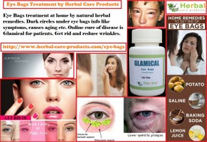 natural-herbal-treatment-for-eye-bags-and-symptoms-causes