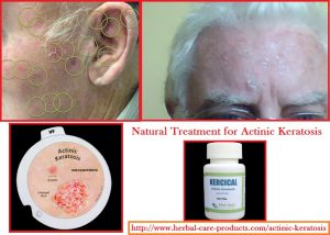 natural-treatment-for-actinic-keratosis