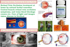 retinal-vein-occlusion-treatment-and-symptoms-causes-by-natural-herbal-care-products