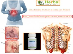 natural-herbal-treatment-for-costochondritis