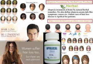 Natural Treatment for Alopecia Areata