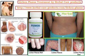 10 Natural Remedies for Lichen Planus