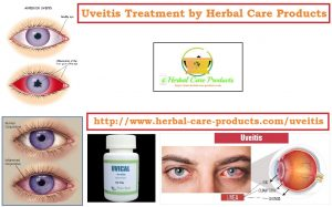 Home Remedies for Uveitis