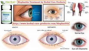 Natural Remedies for Blepharitis Affecting the Eyelids
