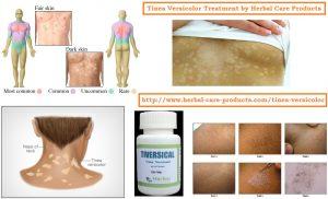 Natural Remedies for Tinea Versicolor, Symptoms & Herbal Treatment