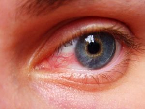 Symptoms of Uveitis