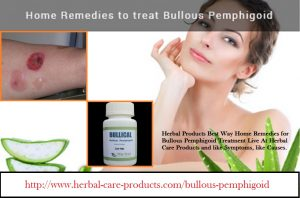 Herbal Treatment for Bullous Pemphigoid