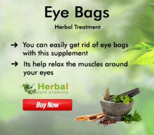 Natural Remedies for Eye Bags