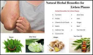 How Herbal Remedies Effective for Lichen Planus