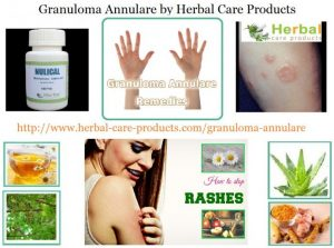 How Natural Herbal Ingredients Treat Granuloma Annulare