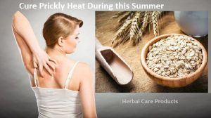 Herbal-Remedies-for-Prickly-Heat