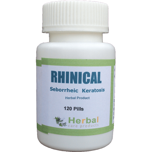 Herbal Treatment for Seborrheic Keratosis
